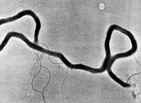 syphilis outbreak things to know